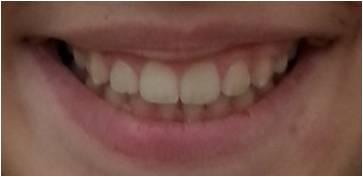 Τα χαμόγελα μας μετά 12